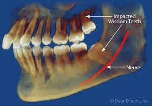 non impacted wisdom teeth picture 2