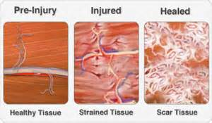 Herbal remedies for scar tissue buildup in elbow picture 1