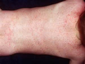 skin rashes in babies picture 7