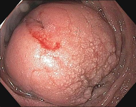 peripheral bowel picture 11