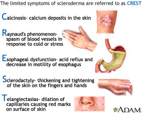 cod liver oil arthritis picture 13