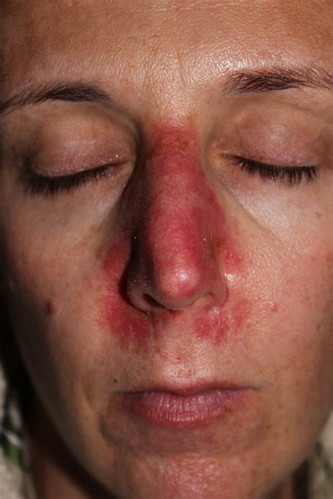 skin tumor red picture 3