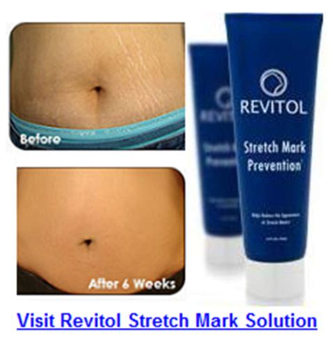cost of revitol stretch mark prevention picture 6