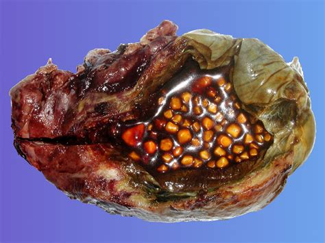gall bladder sludge picture 9