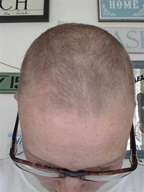 grow hair after radiation picture 3