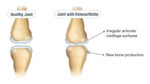 does seasilver help arthritis in the joints picture 12