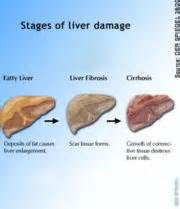 low wbc caused by liver problems and antibiotics picture 1