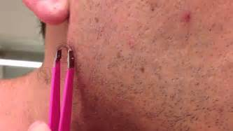 ingrown hair removal picture 18