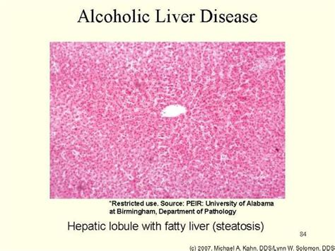alcoholic liver disease picture 13