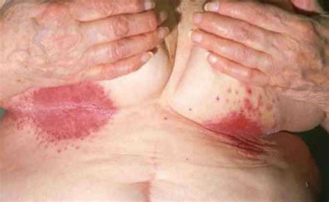 yeast infection under breasts picture 10
