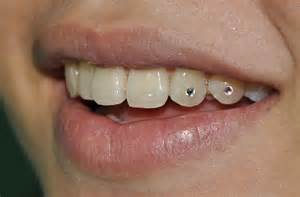 gold chain teeth picture 15