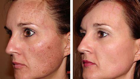 oi acne picture 1