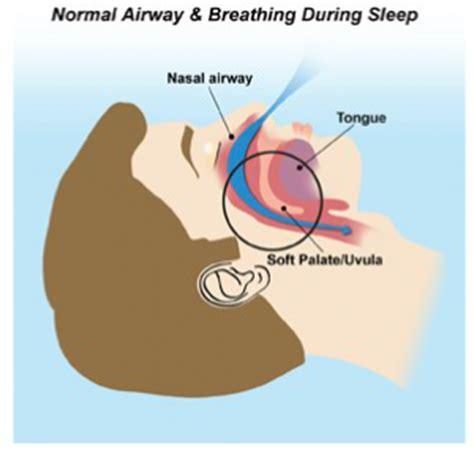choking at during sleep picture 5