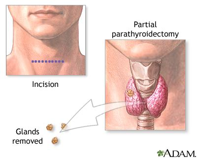 where do i get desiccated thyroid picture 11