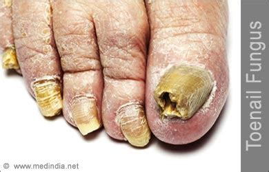 kinds of foot fungus picture 1