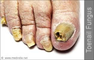 should i dig out toenail fungus picture 14