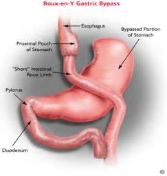 fatty liver disease caused by gastric byp surgery picture 6