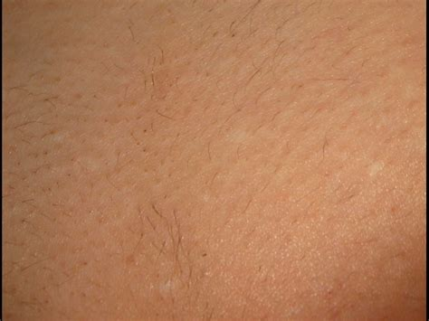 genital hair removal picture 5