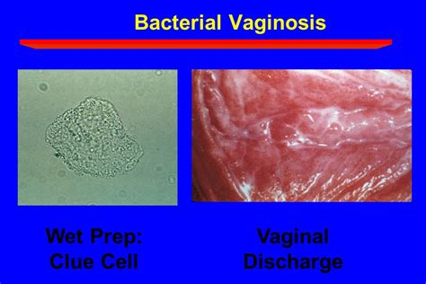 vaginal bacterial infections picture 3