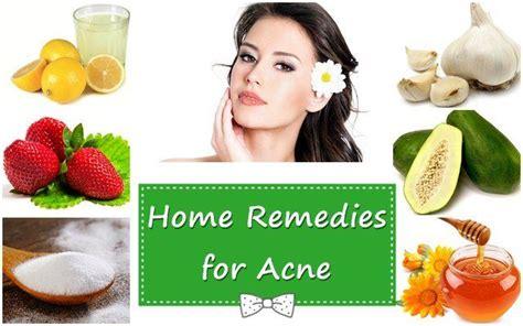 home remedies for acne picture 6