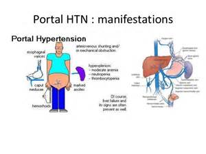 High blood pressure and life expectancy picture 9
