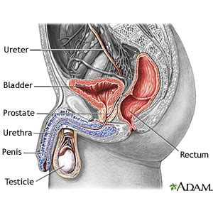 Prostate infection no discharge picture 11