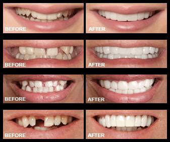 cheap snap on veneers for h picture 14