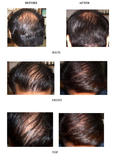 pueraria mirifica men before and after pictures picture 3