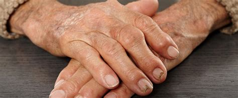 prosis joint pain picture 5