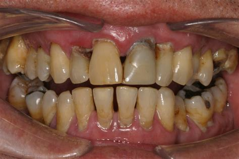 causes of teeth problems picture 17