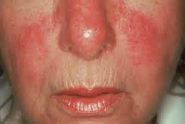 rosacea and mites picture 6