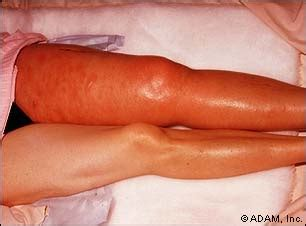 appearance of blood vessels under skin picture 5