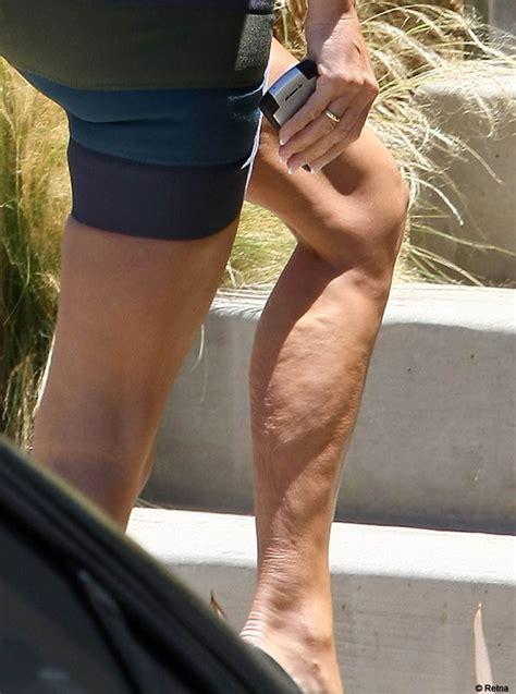 Cellulite machines picture 5