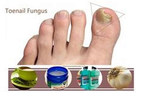 nail fungus and listerine picture 2