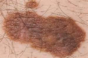 acbd diagnose skin mole picture 13