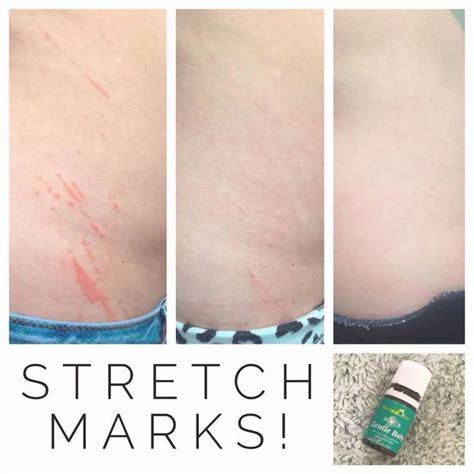vitamin e on stretch marks picture 5