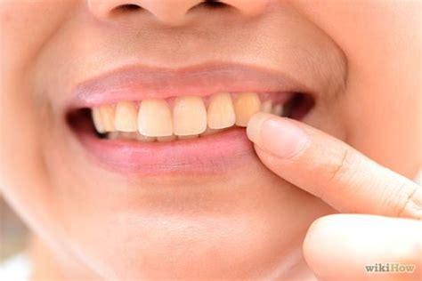 discolored teeth enamel effacia picture 5