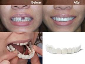 cheap snap on veneers for teeth picture 2