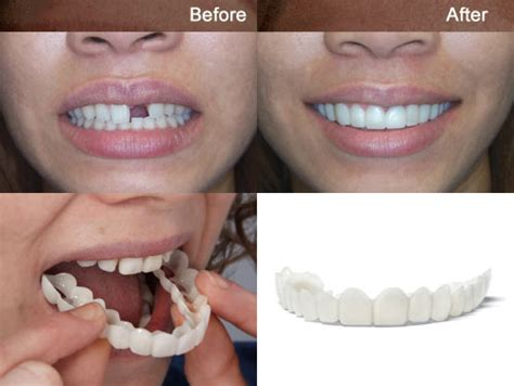 cheap snap on veneers for h picture 7