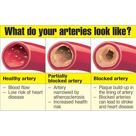 artery cleansing herbal supplements picture 9