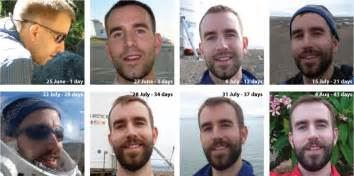 hair growth pictures time lapse picture 10