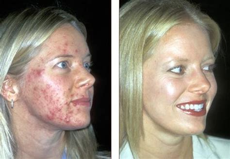 revitol anti aging before and after picture 6