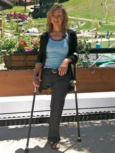 women amputees on crutches picture 10
