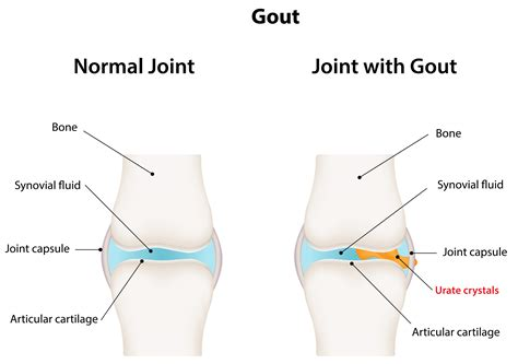 treatment for early arthritis of the knee joint picture 7
