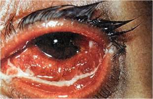 viral or bacterial conjunctivitis picture 9