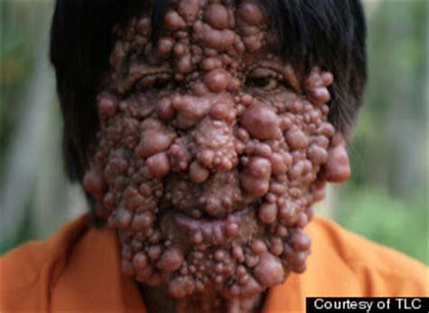 dermatologist skin tumors picture 14