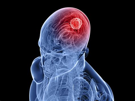 cancer on head picture 15