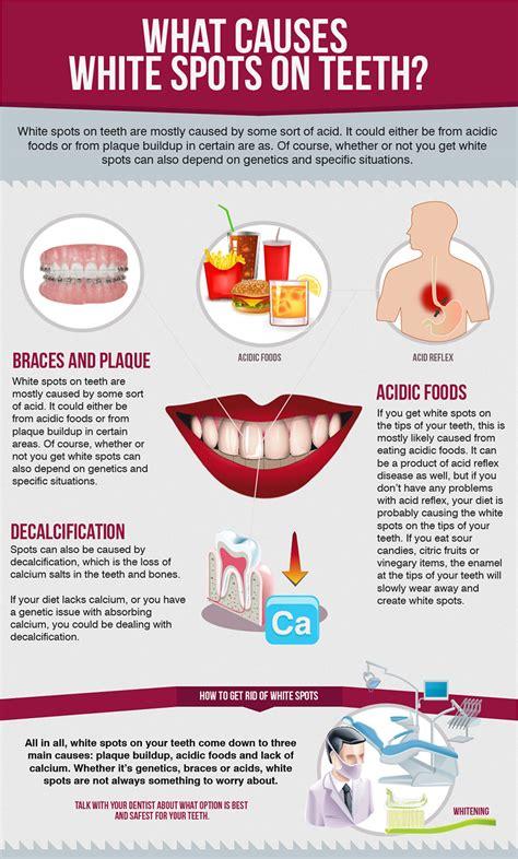 calcium loss in teeth picture 3