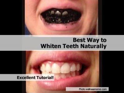 best way to whiten teeth picture 1