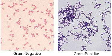 what test are used for bacterial infections picture 7